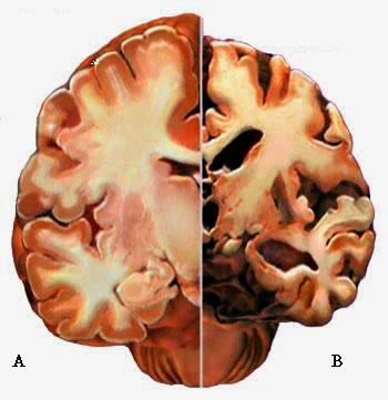 rappresentazione dell'encefalo e staminali