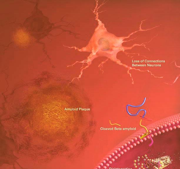 formazione delle placche di Beta-Amiloide